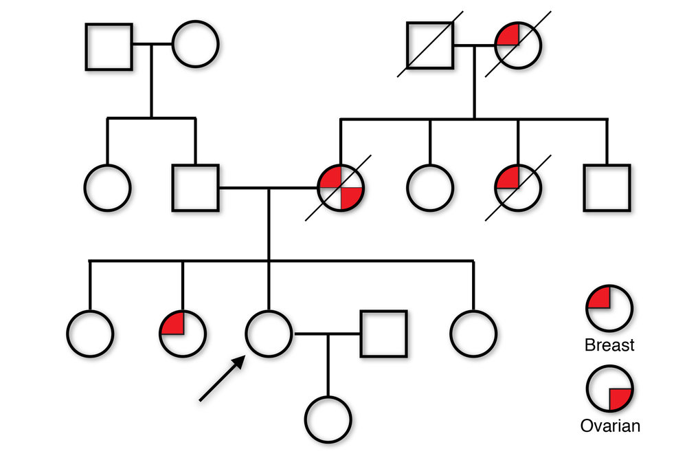 This family has a mutation in a gene called BRCA1. My client (arrow), who is 25, told me that every female relative she had on her mother's side was dead by age 50. Testing of her sister showed the mutation, which my client also had. Timely intervention saved her life.