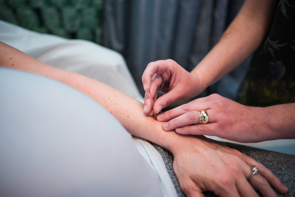 acupuncture-milwaukee-infertility
