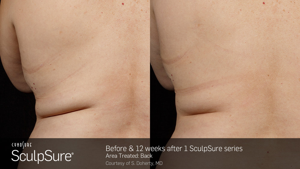 BA_SculpSure_S.Doherty_Back-2_1tx_12weeks.2.jpg
