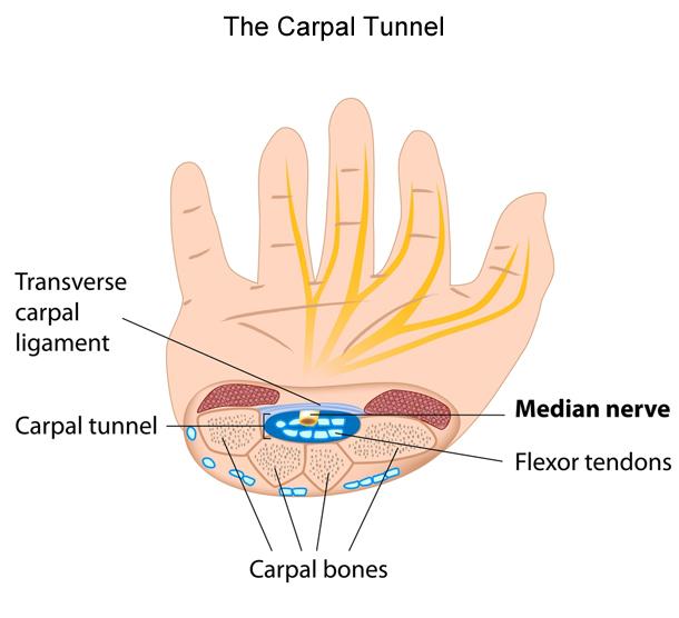 Carpal-Tunnel-Diagram_3.jpg