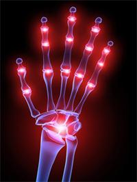 Arthritis-Hand-Fingers.jpg