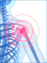 Shoulder-Arthritis-Inflamation.jpg