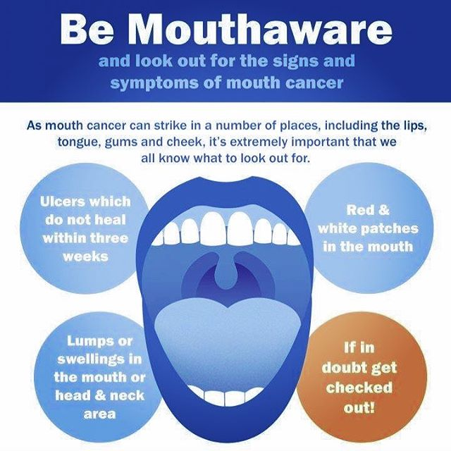 Did you know that November is Mouth Cancer Action Month?  Dental examinations are not just essential to check for any fillings or periodontal problems that may have arisen since your last visit but also to check for onset signs of mouth cancer.  Although risk factors (such as smoking and alcohol) are responsible for many mouth cancers, it is a disease that can affect ANYONE.  This is why it is so important we all know what to look out for: • Don't leave a mouth ulcer unattended for more than three weeks. • Don't ignore any unusual lumps or swellings or red and white patches in your mouth. • Regularly check your own mouth, lips, cheeks, head and neck for anything out of the ordinary.  If you notice anything out of the ordinary, don't hesitate. Book an appointment with a dentist or doctor. Quick action is very often life-saving.  How to spot Mouth Cancer: https://www.dentalhealth.org/mouthaware  For more information on Mouth Cancer Action Month visit: https://www.dentalhealth.org/mouth-cancer-action-month