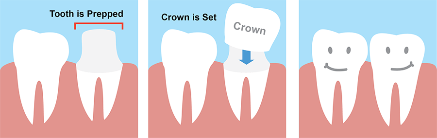 dental-crown-treatment-procedure.png
