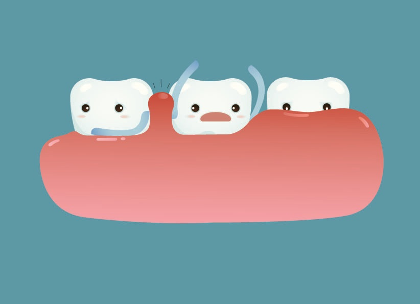 gum treatment (gingivitis, periondontitis)