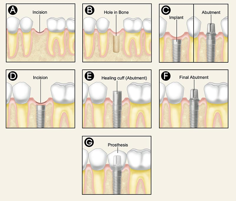 dental-implants-procedure.jpg