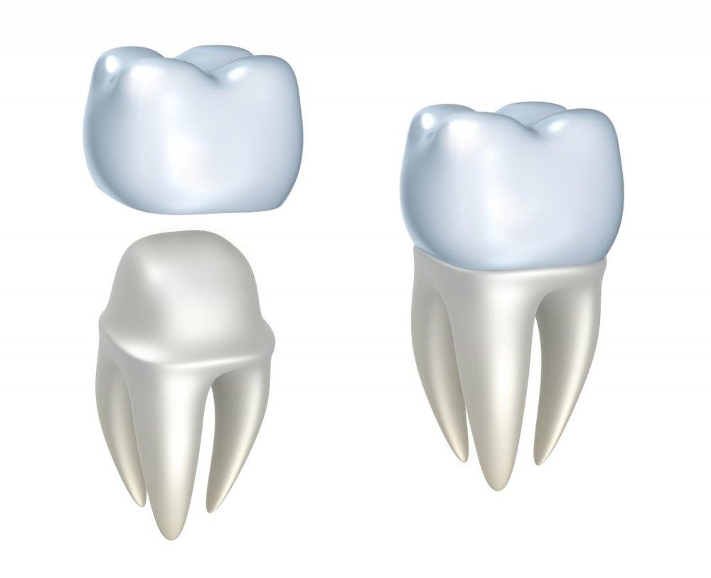 crown-3d-tooth-1024x833-1.jpg