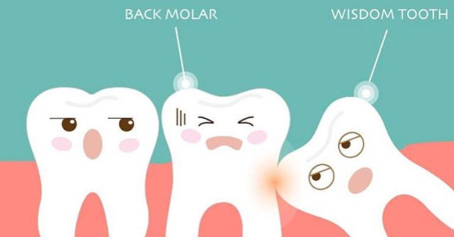 #WellnessWednesday ✌🏼✌🏼 Wisdom tooth can cause all your teeth to crowd, trauma to your nearby healthy tooth, and pain to your mouth. Wisdom tooth are normally not necessary to have. Very few people who has wisdom tooth shows no symptom at all and does not need to be extracted. This will be determined by your dentist👨🏼‍⚕️👩🏻‍⚕️