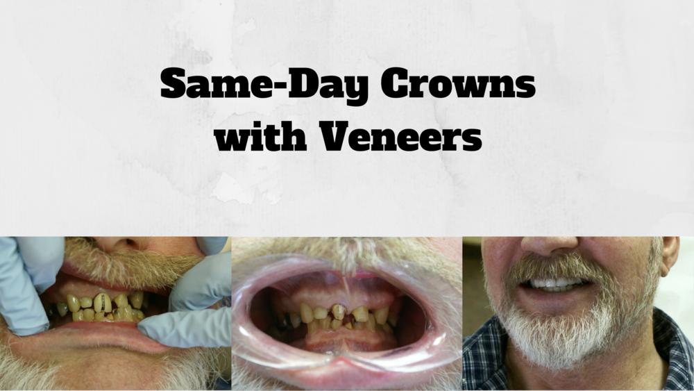 Same-Day Crown%2FVeneers.png