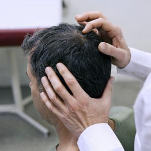 Non-Surgical Hair Loss Treatment