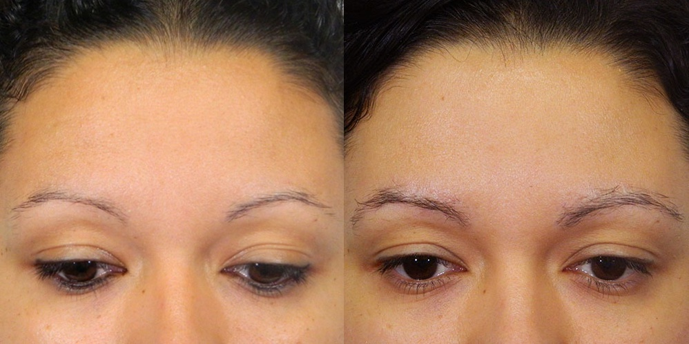 A comparative side-by-side before and after photo of a woman's eyebrows. The left shows the woman with sparse eyebrows before receiving Regeneris Medical's treatment, and the right shows enhanced brow growth after receiving Regeneris Medical's treatment.