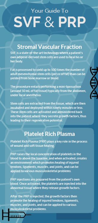 Infographic - Your Guide to SVF and PRP