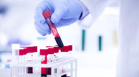 medical laboratory technician associates skills S.jpg