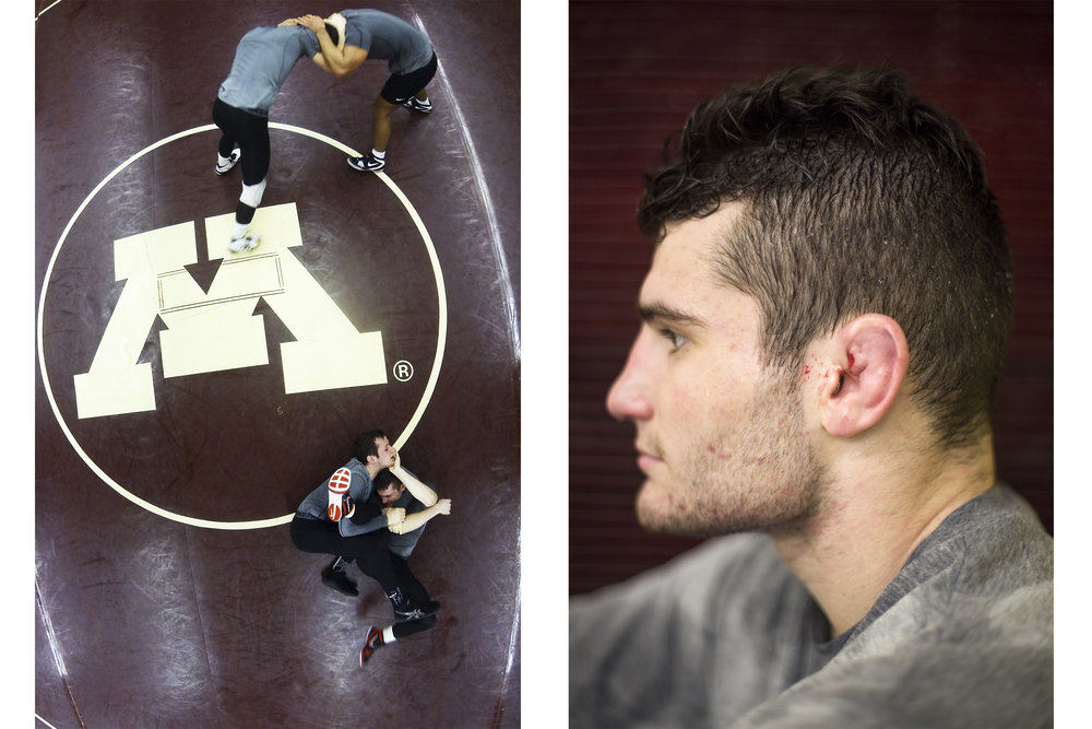 Sophomore Jake Short shows his cauliflower ear, a scar common among wrestlers. The scar forms when blunt trauma damages cartilage, which then fills with fluid that can be drained. Short, who said he has been wrestling since he could walk, described the cauliflower ear as a badge of honor and a symbol for the sacrifices that wrestlers make.