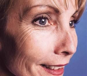ageing-wrinkles-cut-300x263.jpg