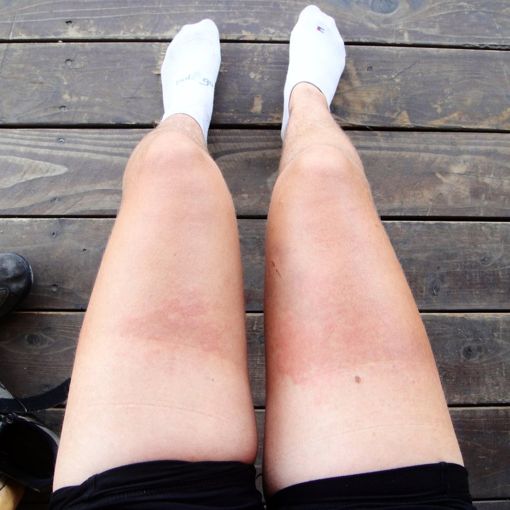 I didn't suffer from poison oak, but I did get this heat rash in Montana... -