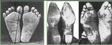 These figures show the result of improper footwear to your feet.