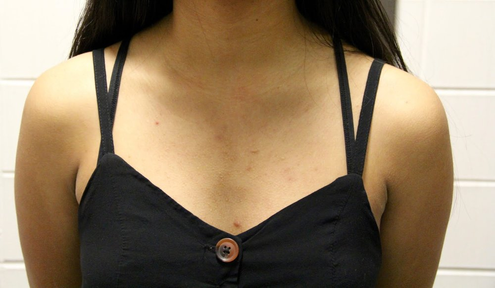 Show skin, not your bra straps...