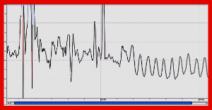 Very typical example of a change in heartbeat rhythm when adopting this technique