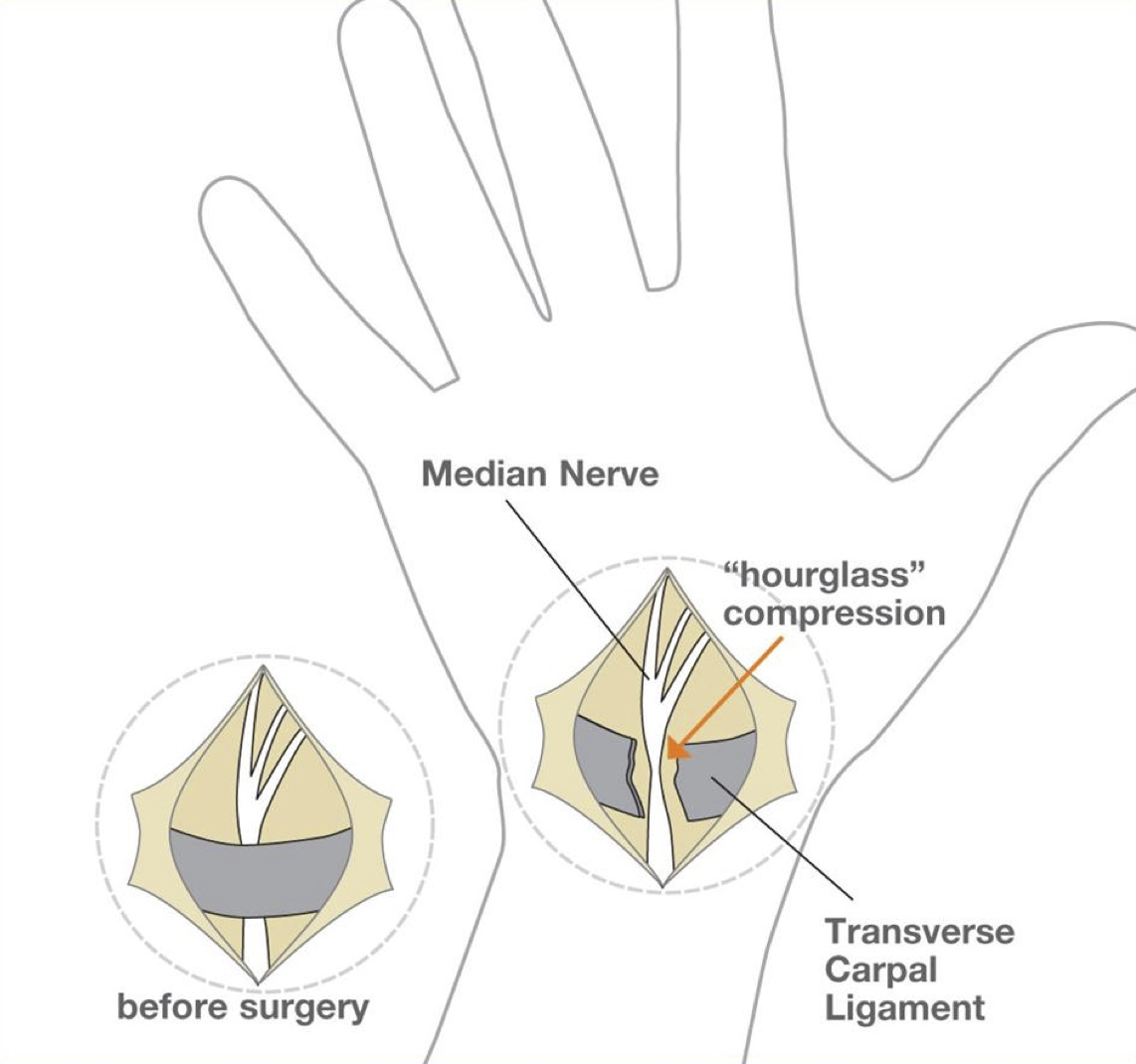 carpal tunnel key hole surgery sydney