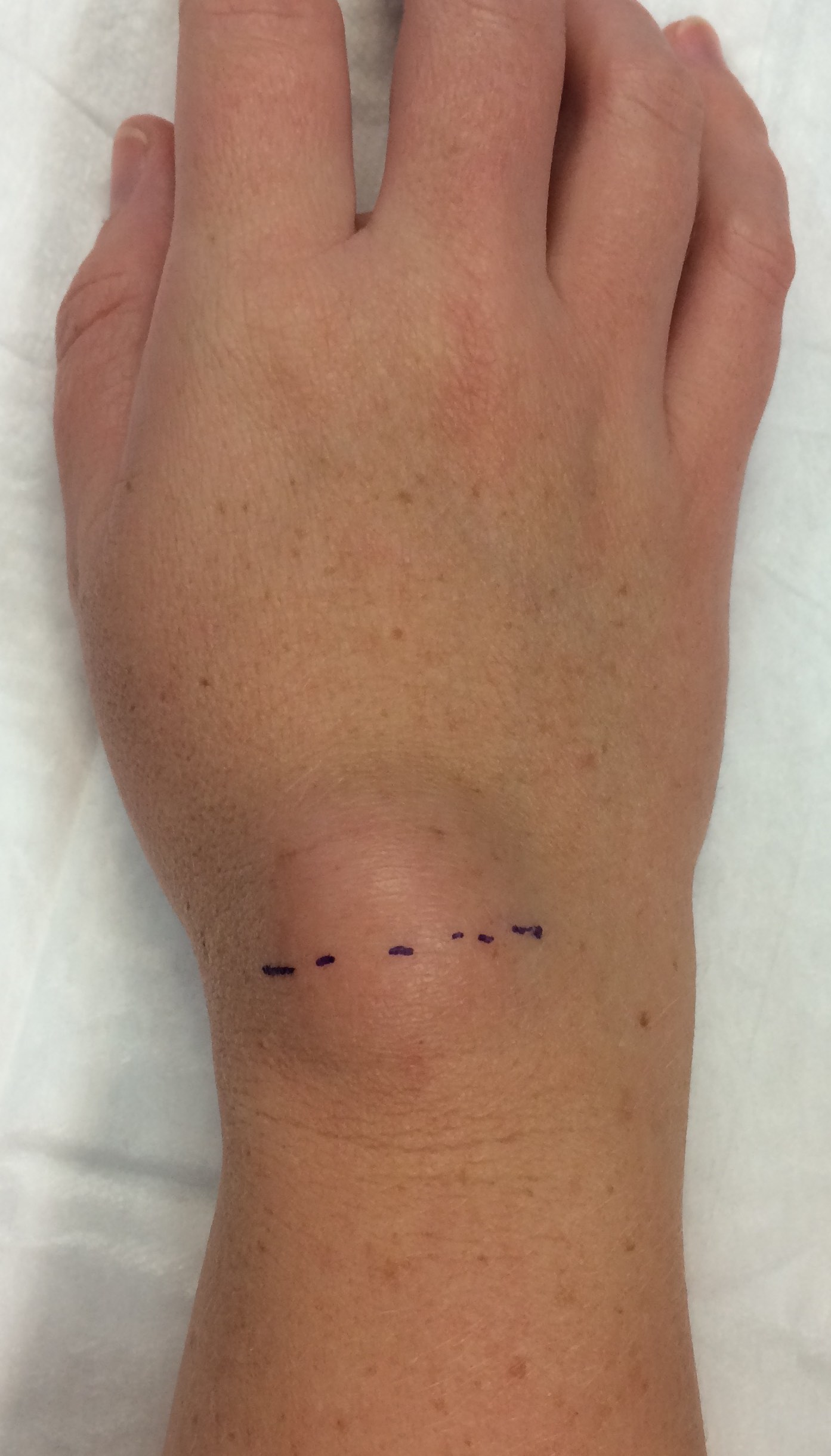 A wrist ganglion with surgery incision marked