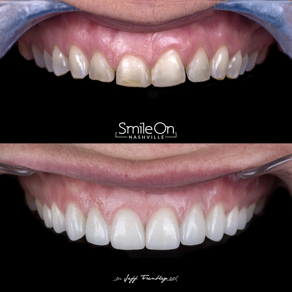 Ten Veneers + Gingivectomy