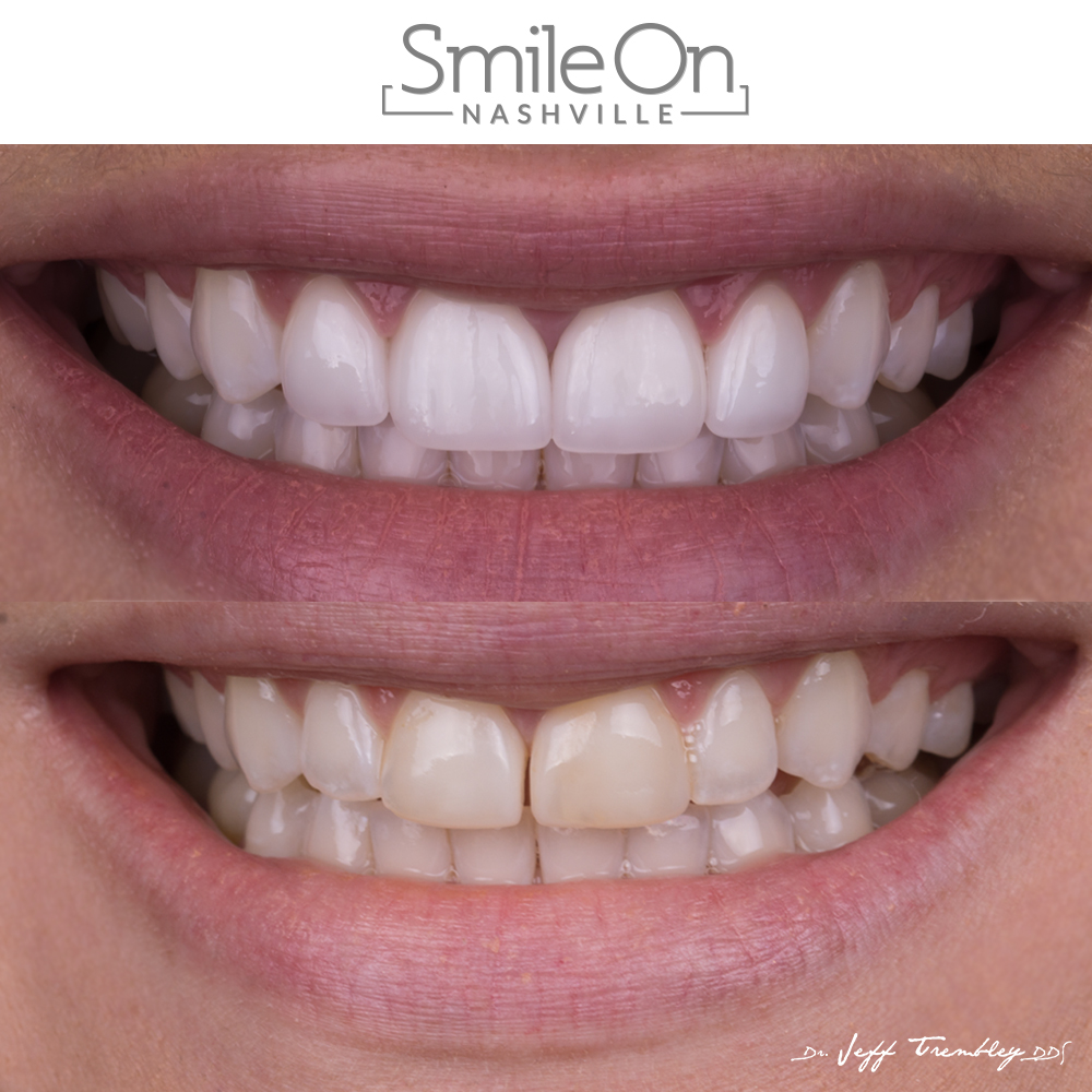 Four Veneers + Whitening