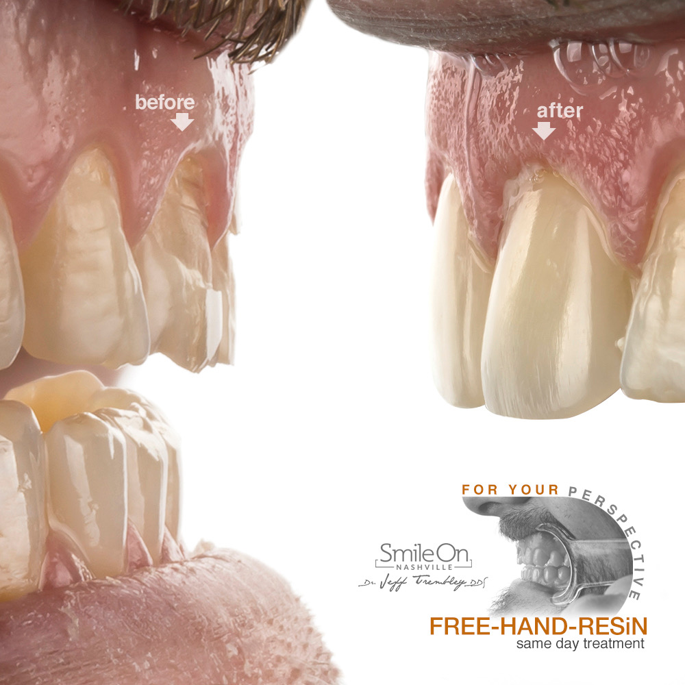 Composite Resin Fillings, Tooth Colored Fillings