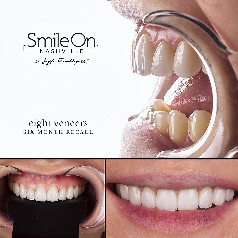 Eight Veneers after Six Months
