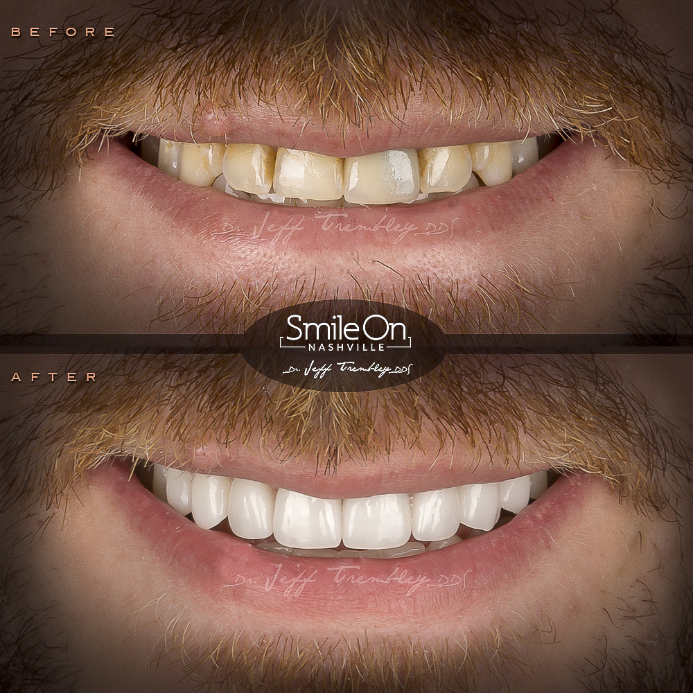 Veneers and a Crown