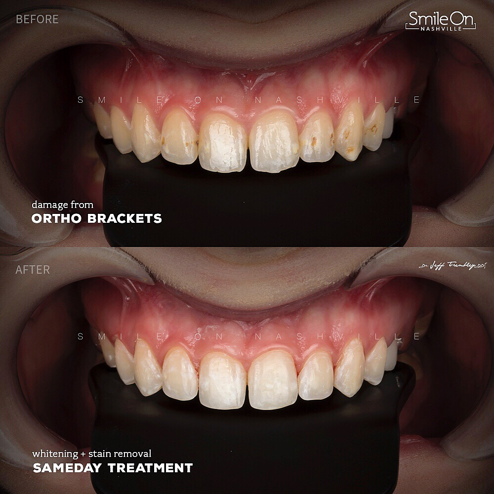 Ortho Brackets Acidic Damage