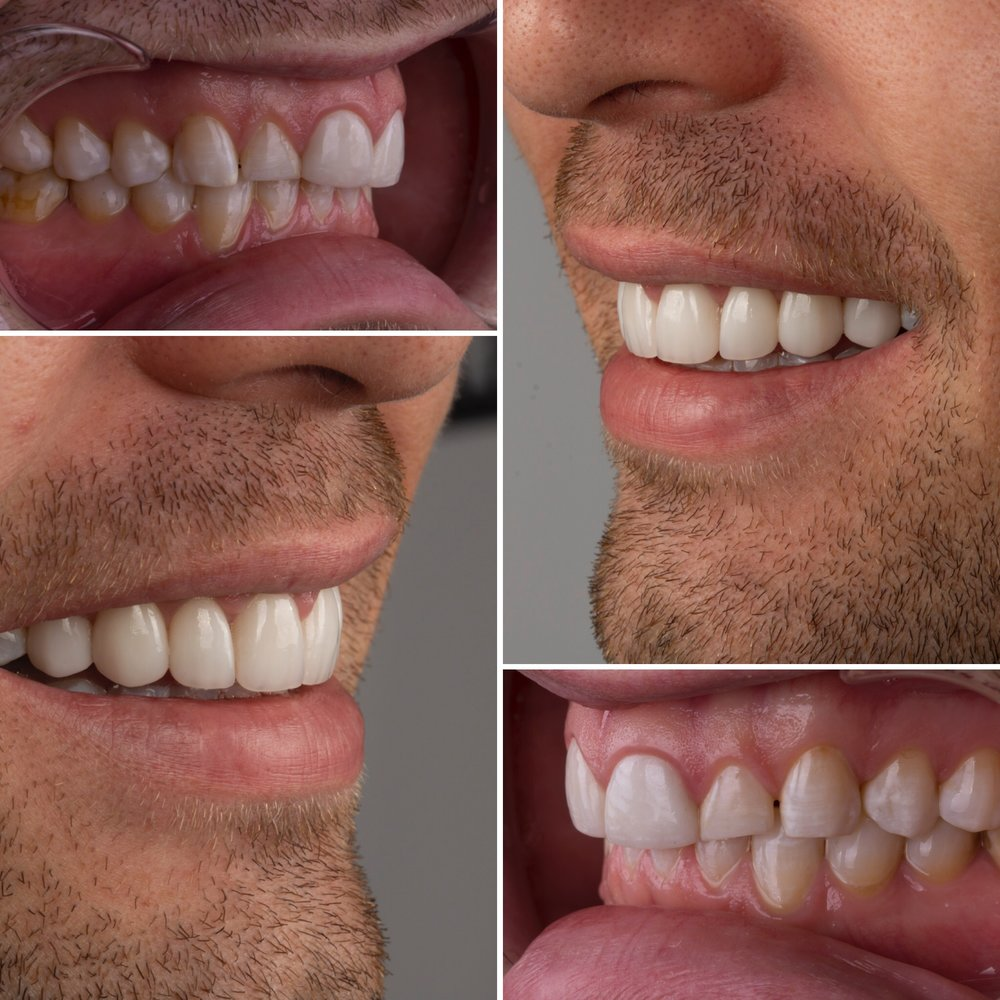 Eight Veneers