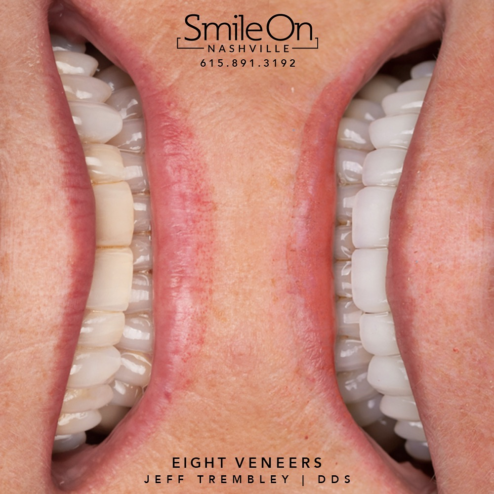 Eight Veneers by Jeff Trembley DDS