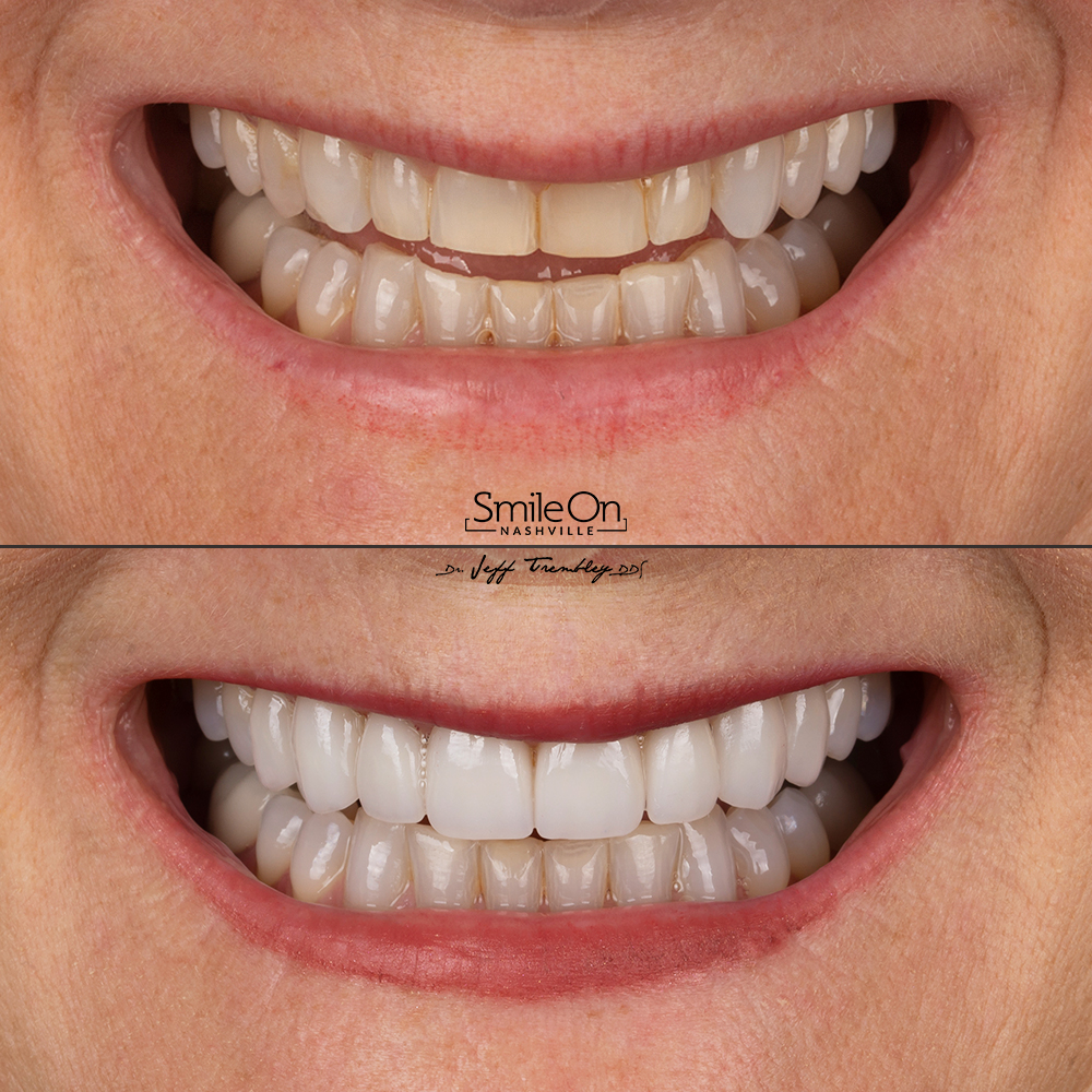 EIGHT VENEERS designed by Dr. Jeff Trembley