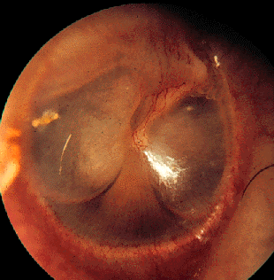 """Glue"" trapped behind the ear drum"