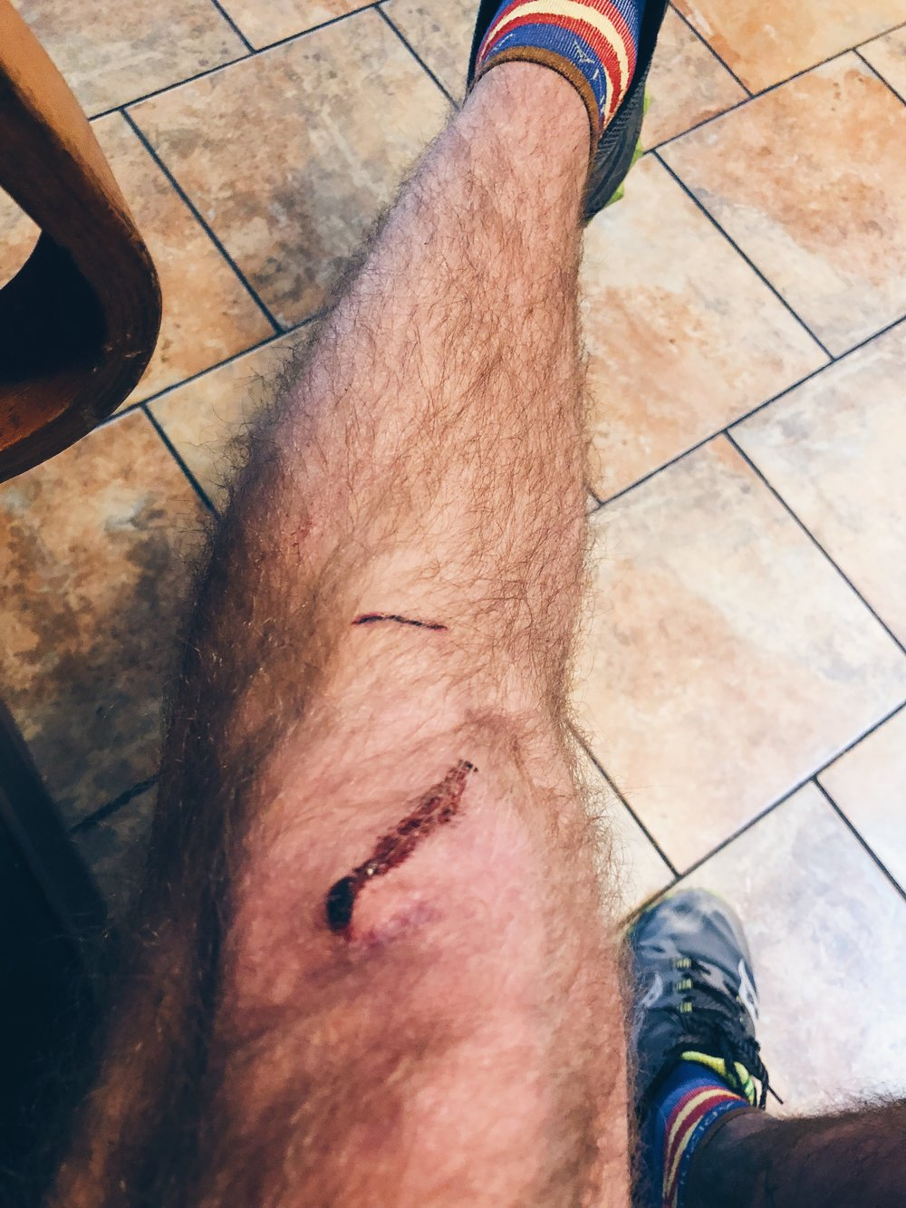 Sliced up knee from the wreck (also wearing my favorite Arizona socks!)