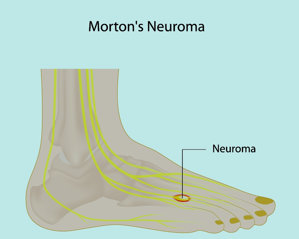 neuromas-treatment-manhattan-toe-doctor