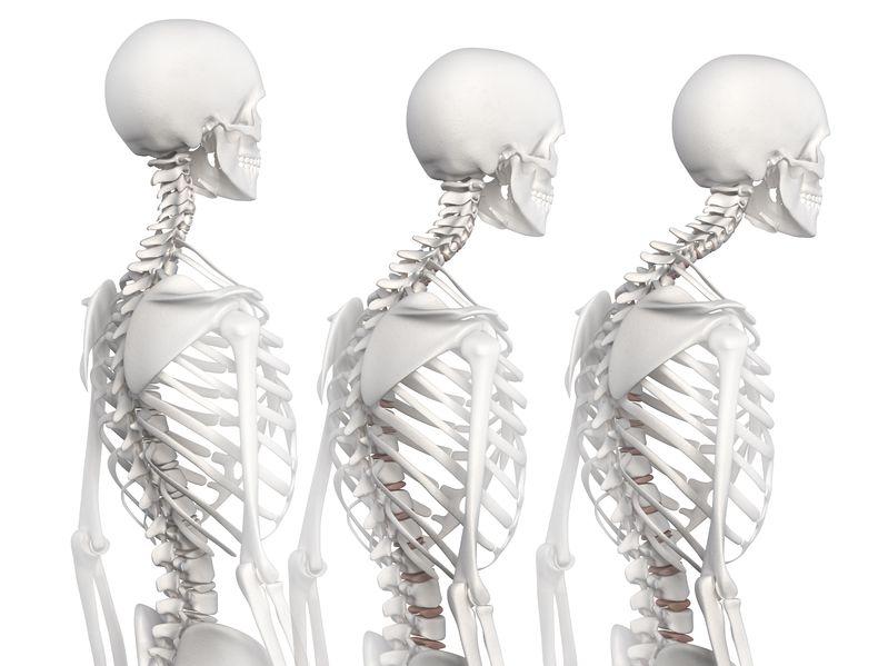 Photo courtesy of   Spine Universe