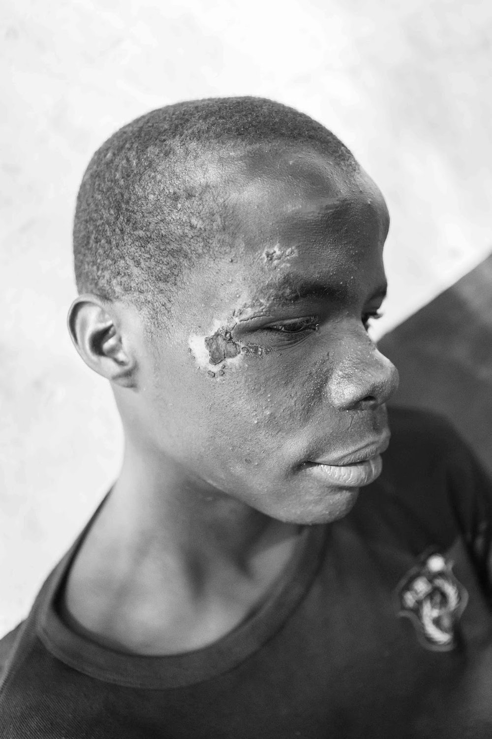 - Police continually raid the children's sleeping areas, keeping them moving to different sides of the border each night. This boy was badly beaten by police as they cleared the children from under a veranda where they slept.