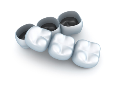 Crowns MG Dental.jpg