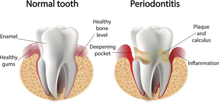 periodontal disease smile style.jpg