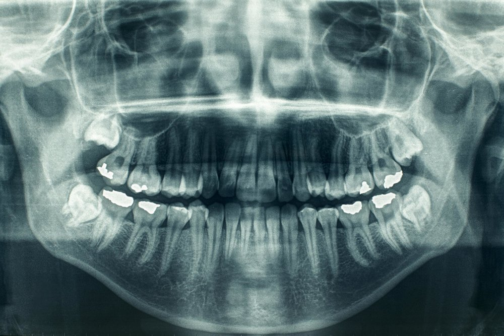 digital x-rays smile style dental.jpg