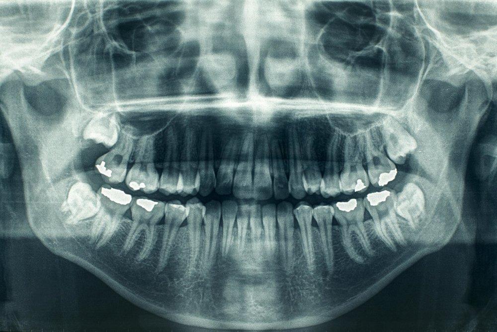 digital x-rays smile style dental.jpg
