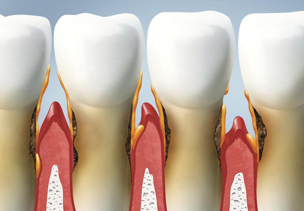 periodontal disease smile style bulleen.jpg