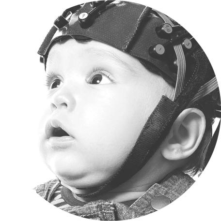 DIAGNOSE & MONITORING - Wanneer prematuren moeten beademd worden, is het van groot belang dat de behandeling zo accuraat mogelijk gebeurt. Eén van de belangrijkste indicatoren daarbij zijn de CO2 waarden (het