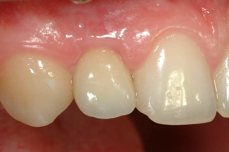 Ceramic crown on implant
