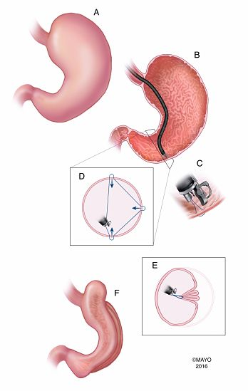 Figure_Endoscopic_sleeve_gastroplasty_creation_using_a_full_thickness_endoscopic_suturing_device_opt.jpg