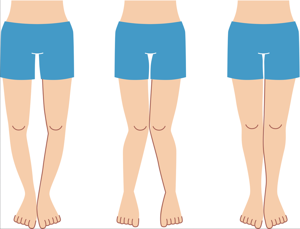 x or o legs.png