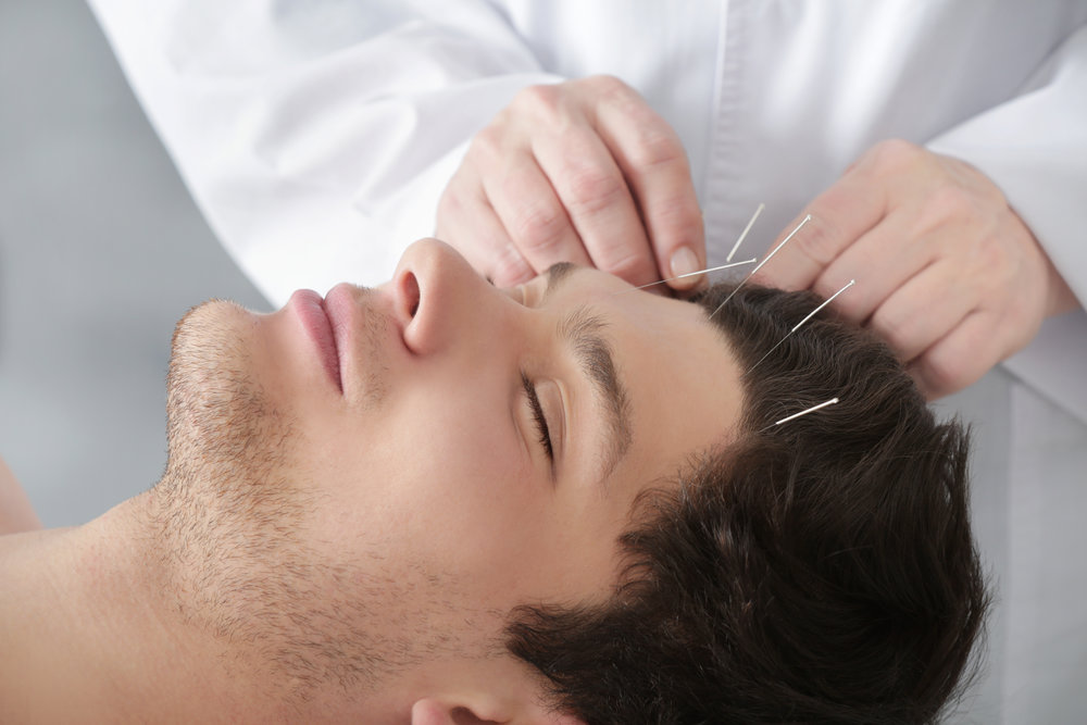 Cosmetic Acupuncture London