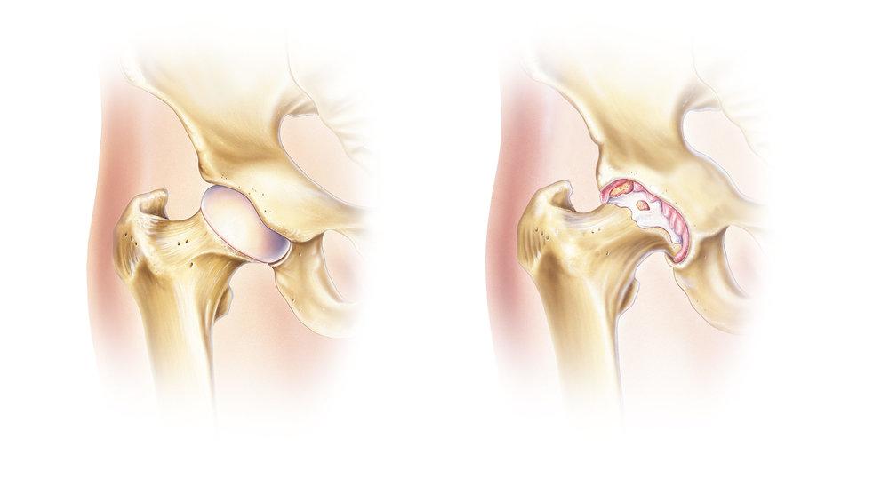 左:健康的髋关节。右:患骨关节炎的髋关节。  左:健康的髖關節。右:患骨關節炎的髖關節。
